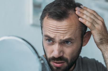 מקריחים? סובלים מדלילות שיער? הפטנט הזה ממש עבורכם.